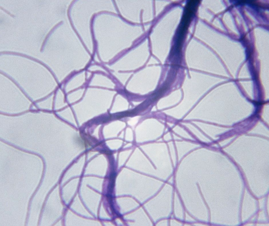 Bacillus cereus under the microscope